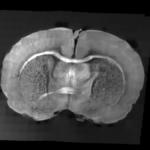 Tranche de cerveau de souris acquise par histologie sérielle OCT 10X
